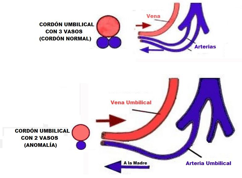cordon umbilical con 2 vasos